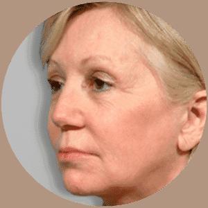 Lifting du visage - Photos avant et après - Critiques