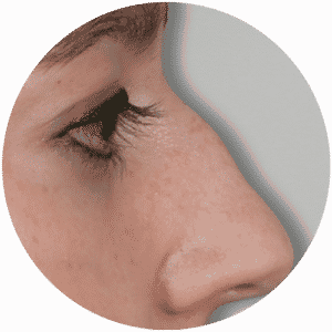 Avant la CHIRURGIE DU NEZ - Global Medical Care® - Rhinoplastie