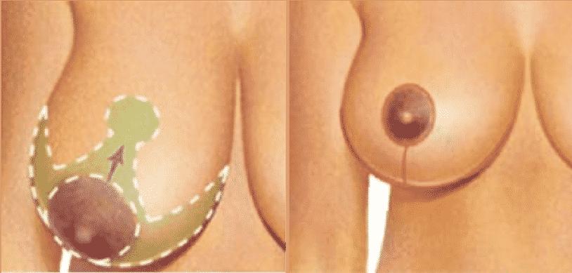 Réduction des seins - Lifting des seins - Photos avant et après - Meilleurs commentaires
