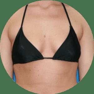 Augmentation mammaire - Photos avant et après - Meilleures critiques