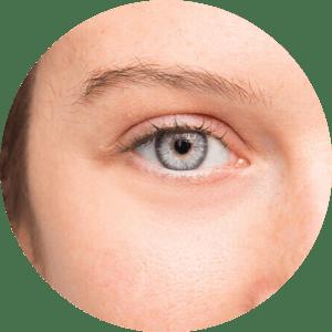 Chirurgie des paupières - Photos avant et après - Meilleurs avis