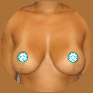 Soulèvement des seins - Photos avant et après - Meilleures critiques