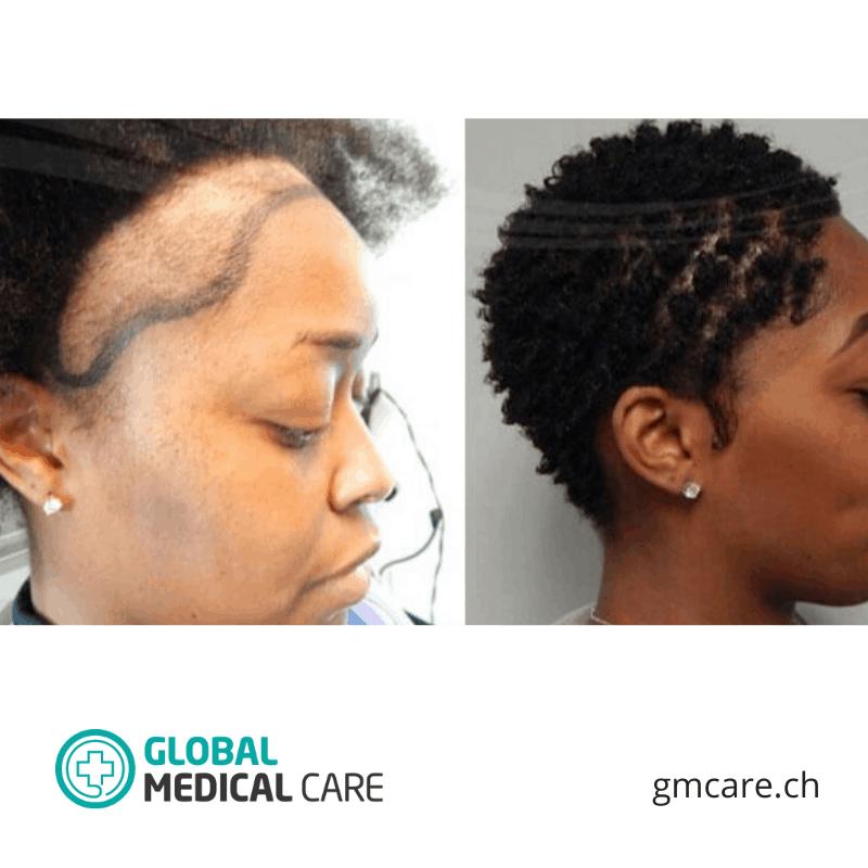 La greffe de cheveux chez la femme - Photos avant et après - Critiques