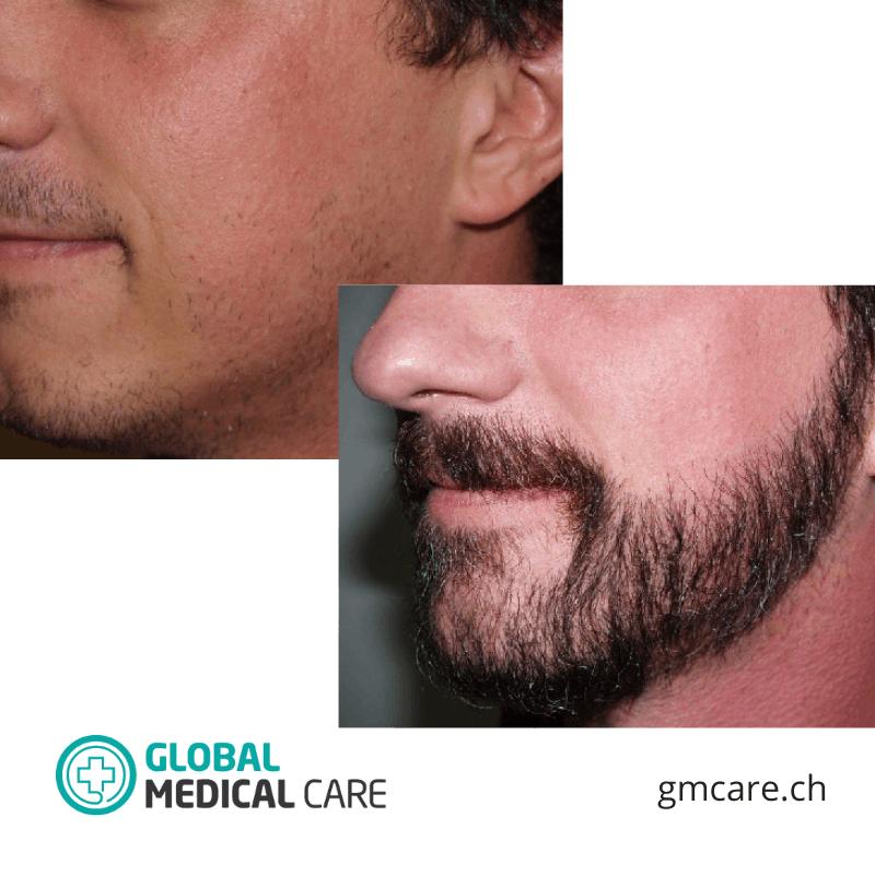 Greffe de barbe - Photos avant et après - Critiques